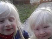 albinas